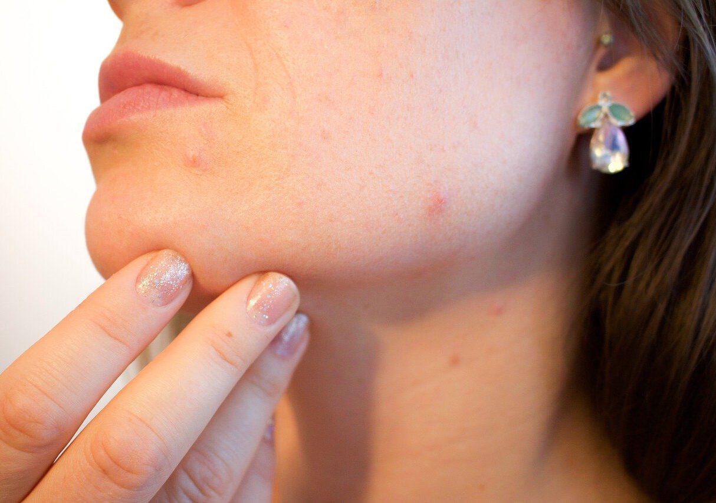 Een gezonde huid begint bij natuurlijke producten